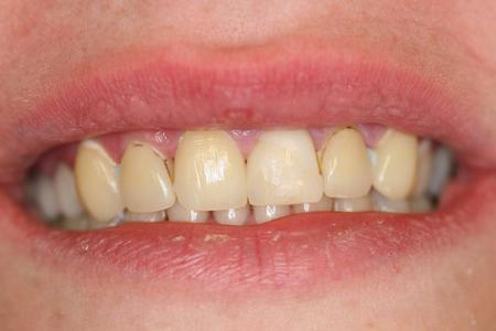 We Invite You To Contact Elite Dental If Would Like Experience Our High Quality Dentistry In American Fork Utah Are Eager Help Improve